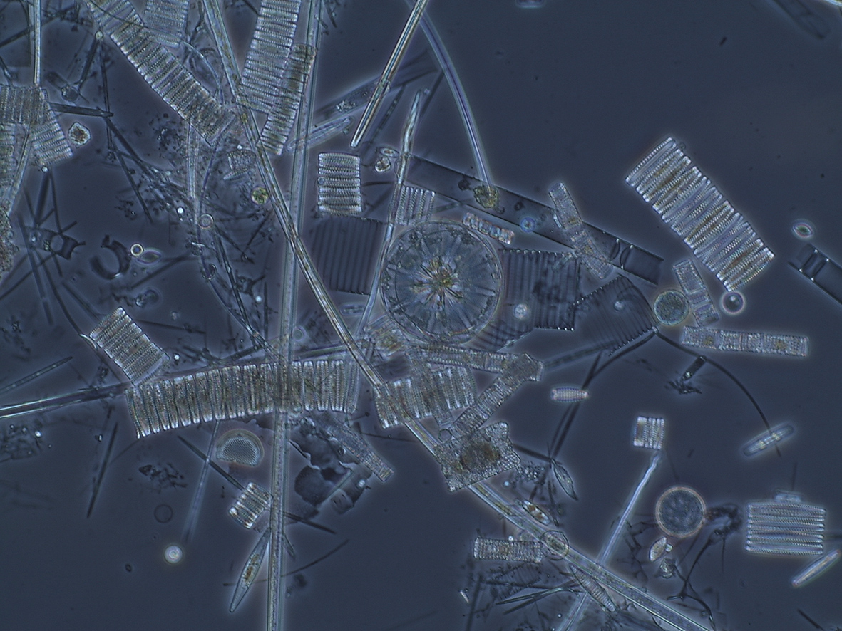 Deep sea diatoms